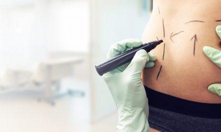 Cirurgia de abdômen é a mais procurada em Imperatriz